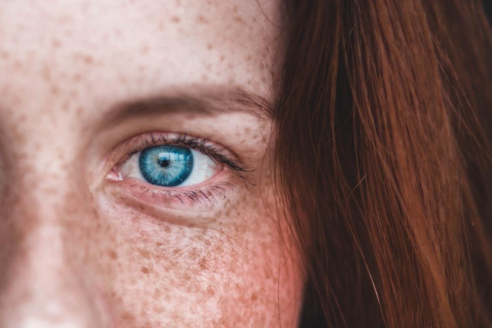 primo piano con ragazza con capelli rossi naturali occhi azzurri e lentiggini